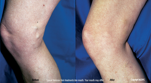 varicose_vein_treatments3